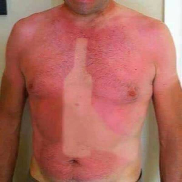 Drunk sunburn.