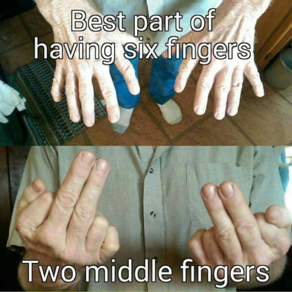 The best part of having six fingers.