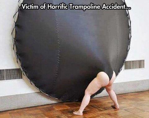 Trampoline Accident Causes One Hellacious Wedgie.